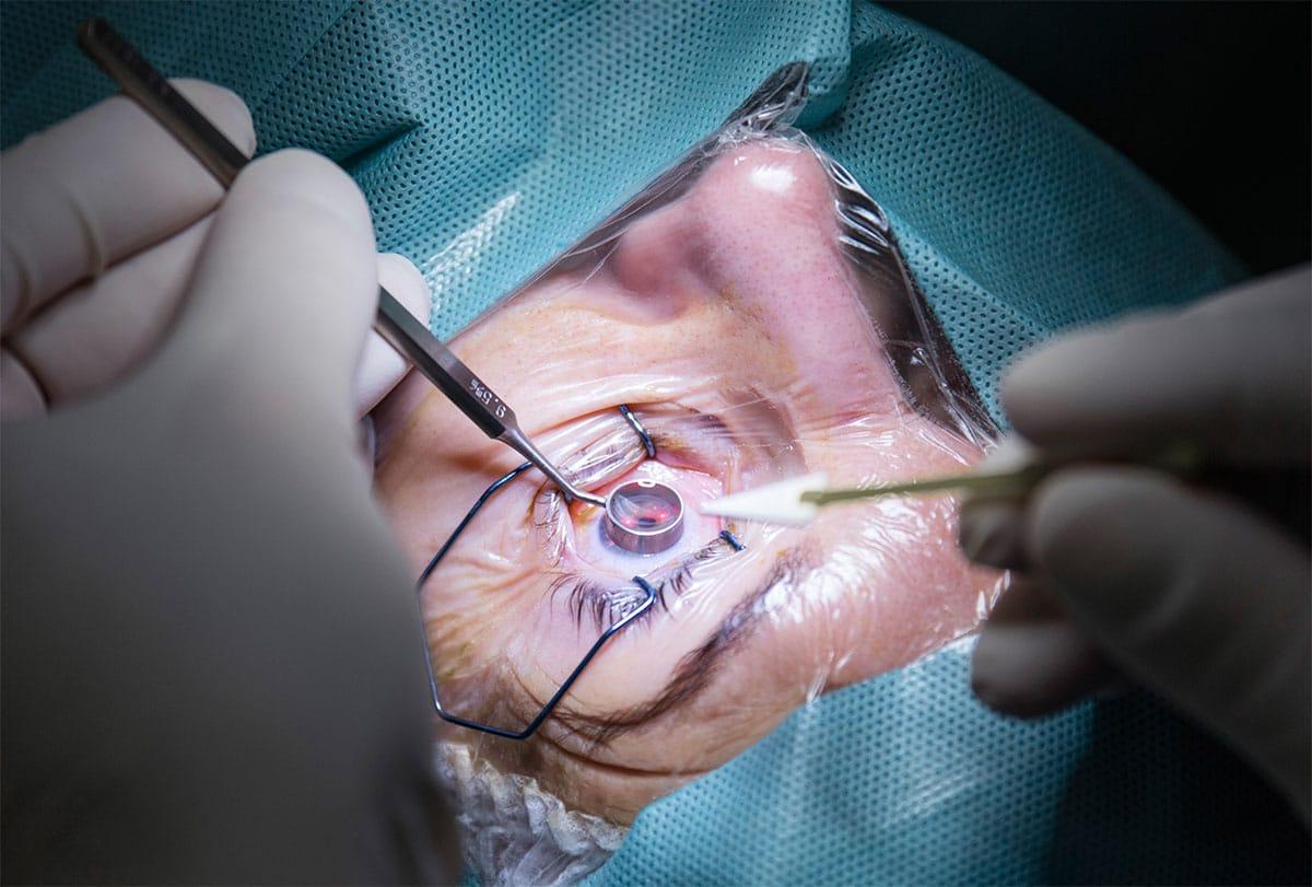 Laserowe usuwanie wad wzroku Wielkopolska