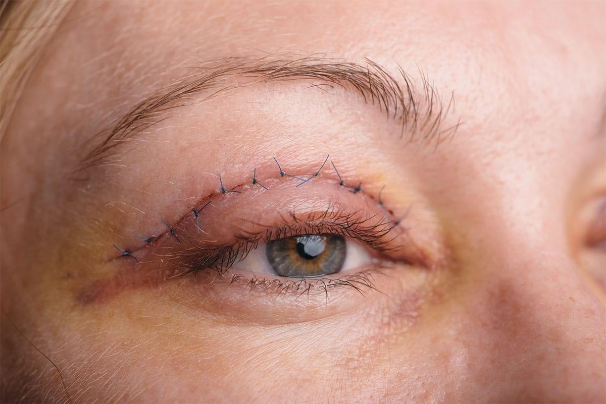 operacje powiek i oczu gniezno wielkopolska